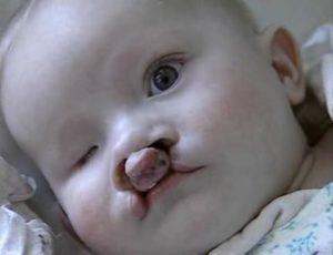 Дети рожденные после чернобыля льготы